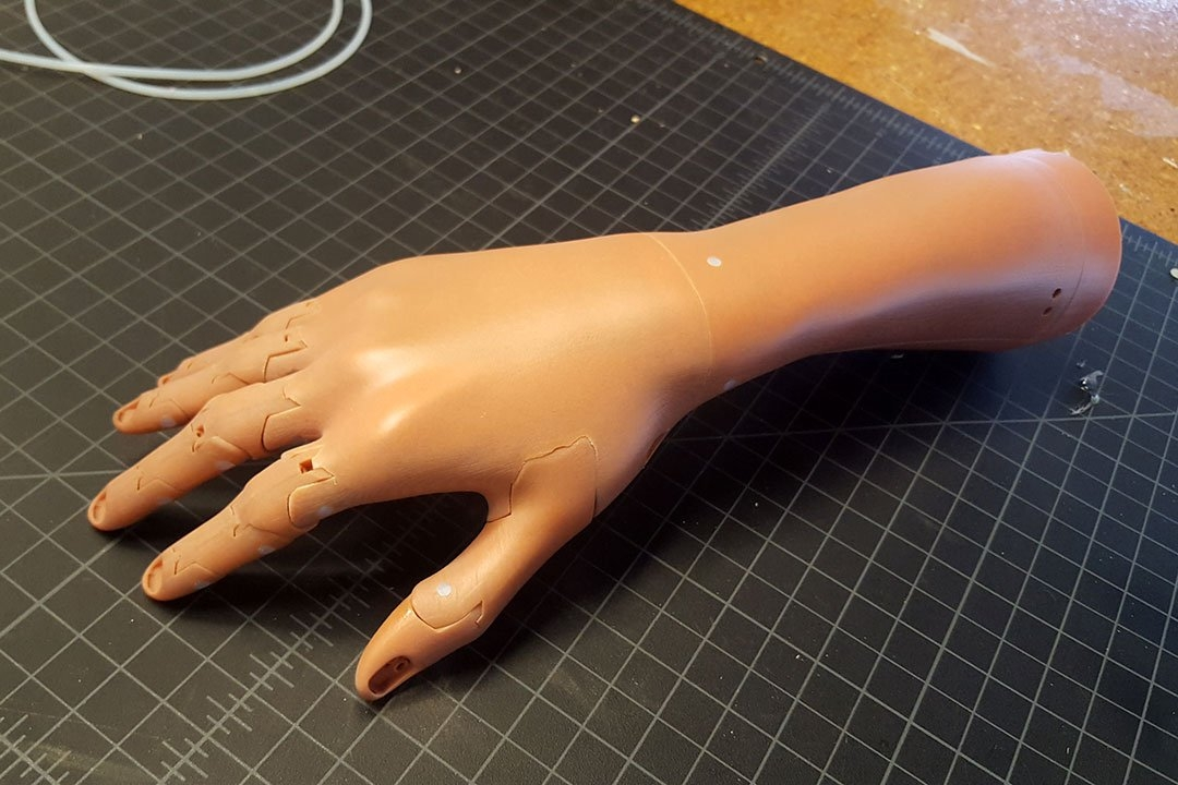 3D scanning & printed prosthetic arms